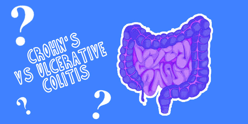 Can You Have BOTH Crohn's Disease and Ulcerative Colitis? | Crohns disease,  Crohns, Ulcerative colitis